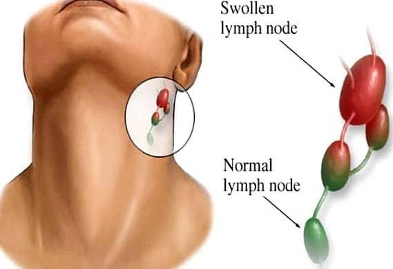 hodgkin's lymphoma - photo #46